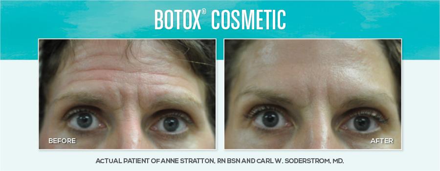 Medspa-BAimages-Botox1