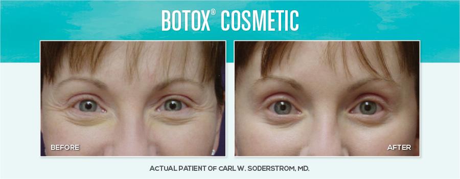Medspa-BAimages-Botox2